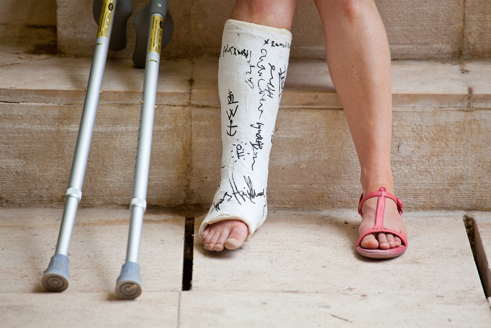 Fractures and Surgeries